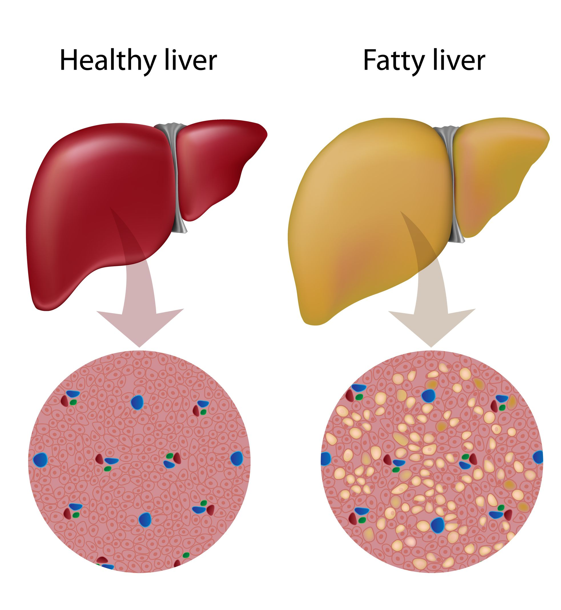 Metabolic Syndrome and Fatty Liver